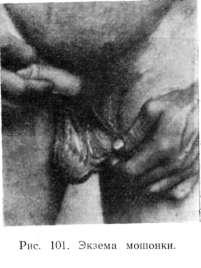 Применение крема акрустал