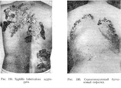 виды бугорковых сифилидов