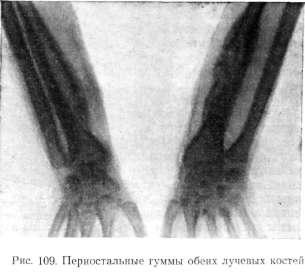 Сиффилис костей и суставов гиалуроновая кислота для суставов купить в ижевске